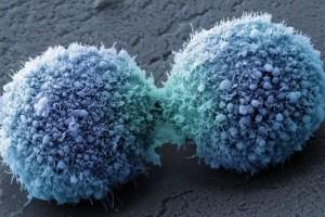 Nature子刊缺氧是导致癌细胞不断暴虐的首恶