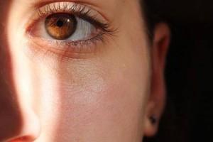 眼睛白眼球水肿的原因眼睛白眼球水肿的注意事项